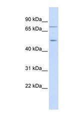 NBP1-56484 - EIF2AK1 / HRI