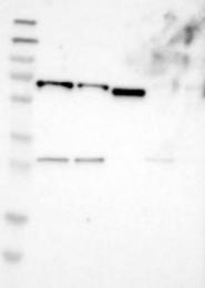 NBP1-83210 - EIF2AK1 / HRI