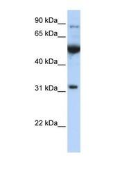 NBP1-57644 - EIF2B1 / EIF2BA