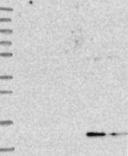 NBP1-91867 - 4E-BP3