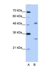 NBP1-57248 - EIF4H / WBSCR1