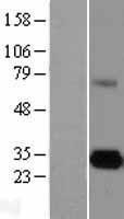 NBL1-10220 - ELA3A Lysate