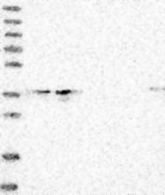 NBP1-93926 - ELOVL7