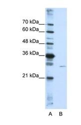 NBP1-57410 - EMG1 / C2F