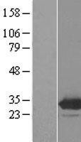 NBL1-10254 - EMG1 Lysate