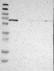 NBP1-84861 - EMAP2 / EML2