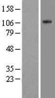 NBL1-10258 - EML4 Lysate
