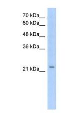 NBP1-62705 - EMP2 / XMP