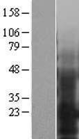 NBL1-10261 - EMP3 Lysate