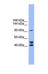 NBP1-59852 - Autotaxin / ENPP2