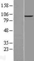 NBL1-10275 - ENPP2 Lysate