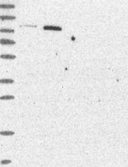 NBP1-88928 - CD203c / ENPP3