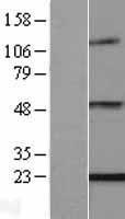 NBL1-10278 - ENPP6 Lysate