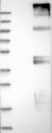 NBP1-84839 - SLC29A1 / ENT1