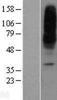 NBL1-16091 - ENT1 Lysate