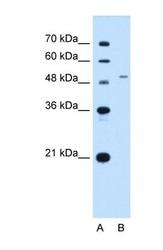 NBP1-69312 - SLC29A2 / ENT2
