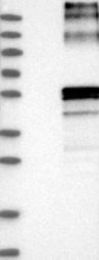 NBP1-85253 - SLC29A2 / ENT2