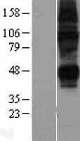 NBL1-16092 - ENT2 Lysate