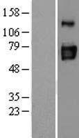 NBL1-10282 - ENTPD3 Lysate