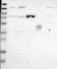 NBP1-81510 - ENTPD4