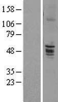 NBL1-10283 - ENTPD6 Lysate