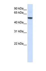 NBP1-59484 - ENTPD8