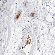 NBP1-89371 - EPB41 / Protein 4.1