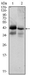 NBP1-47493 - CD326 / EPCAM / TACSTD1