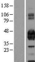 NBL1-14804 - EPCR Lysate