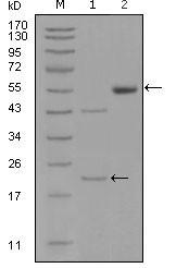 NBP1-47387 - EPHA5