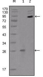 NBP1-47525 - EPHB2