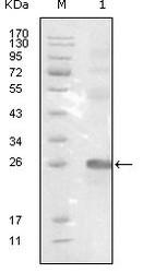 NBP1-47522 - EPHB3