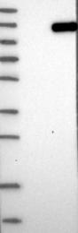 NBP1-84776 - EPHB3