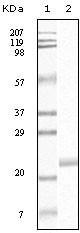 NBP1-47333 - EPHB4