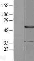 NBL1-10294 - EPHX1 Lysate