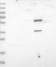 NBP1-89531 - Epoxide hydrolase 2 / EPHX2