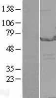 NBL1-10295 - EPHX2 Lysate