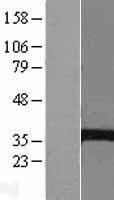 NBL1-07201 - EPHX4 Lysate