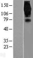 NBL1-10301 - EPS15 Lysate