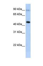 NBP1-58010 - Eosinophil peroxidase