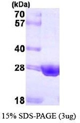 NBP1-41148 - HSD17B10 / ERAB