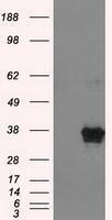 NBP1-47733 - ERCC1