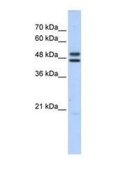 NBP1-54898 - ERCC8