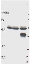 NBP1-78031 - RPS6KB1 / STK14A