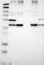 NBP1-88539 - Erlin-1