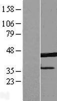 NBL1-10333 - ERLIN1 Lysate