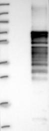 NBP1-81835 - ERRFI1 / MIG6