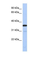 NBP1-57596 - Esterase D (ESD)
