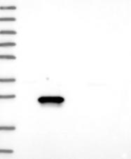 NBP1-89479 - Esterase D (ESD)