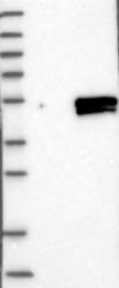 NBP1-87945 - ELF3 / ESE-1